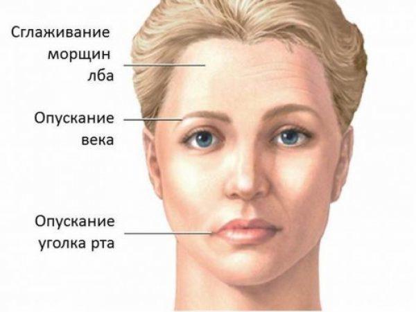 Асимметрия лица - причины, методы исправления у женщин