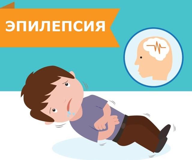 Эпилепсия у детей - причины, симптомы, диагностика и лечение