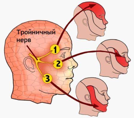 Неврит тройничного нерва: симптомы, причины, лечение