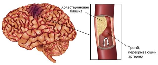 Инсульт и его последствия у женщин и мужчин