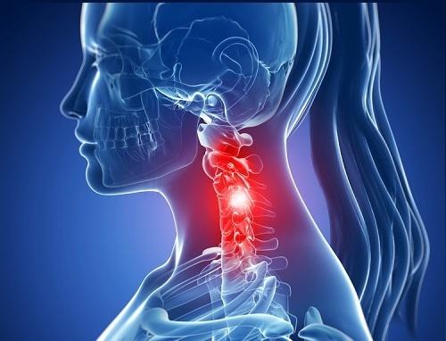 Болит шея с левой стороны: причины и лечение боли слева