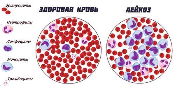 Осложнения при переливании крови: профилактика, гемотрансфузионный шок, профилактика