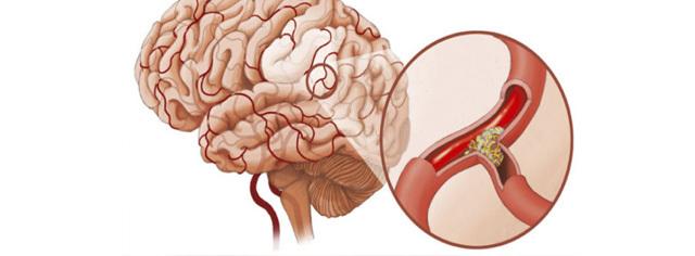 Ангиодистония по гипертоническому типу что это такое