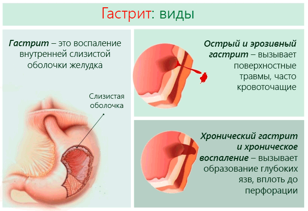 Лечение гастрита в домашних условиях у взрослых: народные средства, диета при обострении, первая помощь