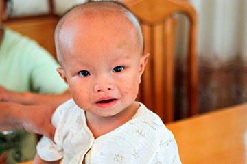 Гидроцефальный синдром у ребенка до года - симптомы, диагностика, лечение