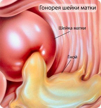 Боли при месячных: почему возникают и что делать при сильных болях перед и во время месячных?