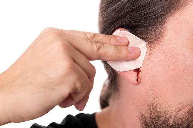Пошла кровь их уха: причины кровотечения, и лечение домашними средствами, первая помощь при механическом повреждение и появлении новообразования