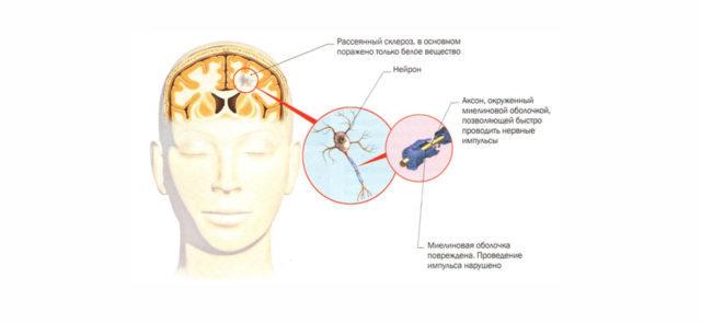 Рассеянный склероз: признаки и симптомы, формы, фазы течения РС