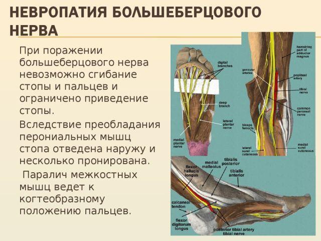 Невропатия большеберцового нерва: причины, симптомы и лечение