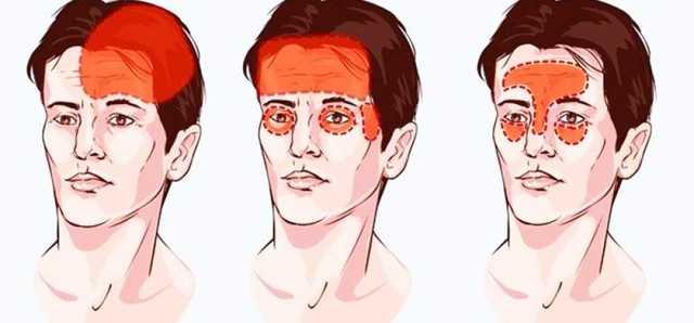 Причины сильной головной боли в лобной части