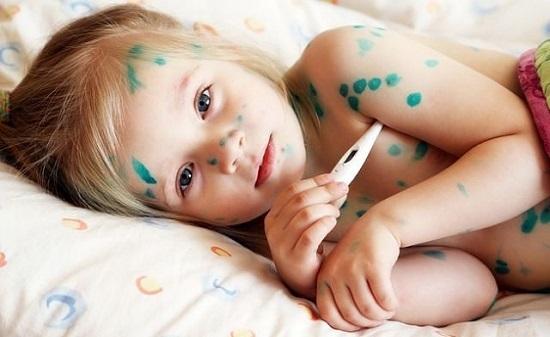Сыпь у ребенка (89 фото): виды детских инфекционных заболеваний с пояснениями, с мелкой красной или белой сыпью по всему телу, на локтях и груди, высыпания на коже