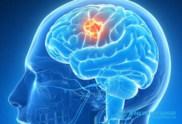 Мультикистоз головного мозга это