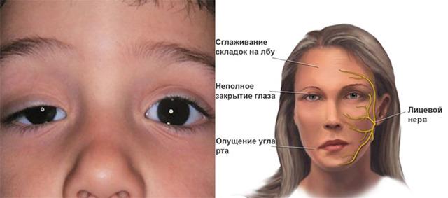 Миастения - что это такое, причины и симптомы