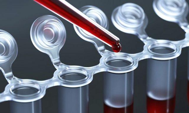 Норма АЦЦП при ревматоидном артрите: расшифровка анализа крови на антитела к цитруллину