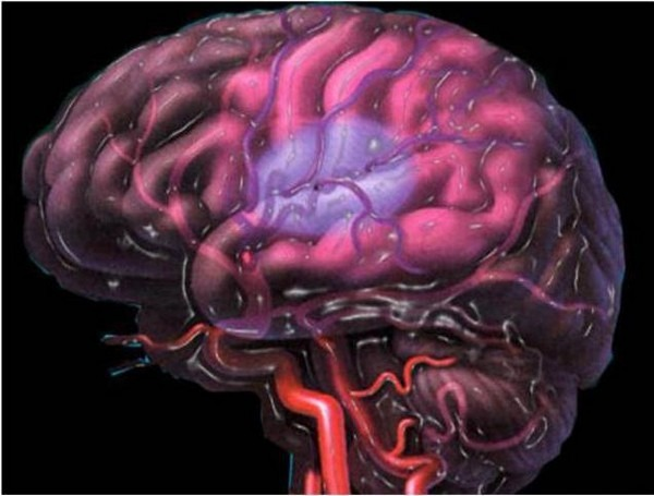 Церебральная ишемия 1–2 степени у новорожденного и ее последствия