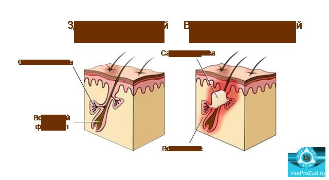 Пятна на теле похожие на лишай которые не чешутся: фото, причины и лечение