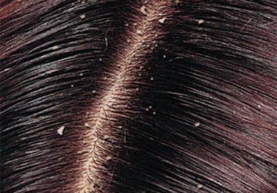 Самые эффективные способы лечения жирной себореи кожи головы