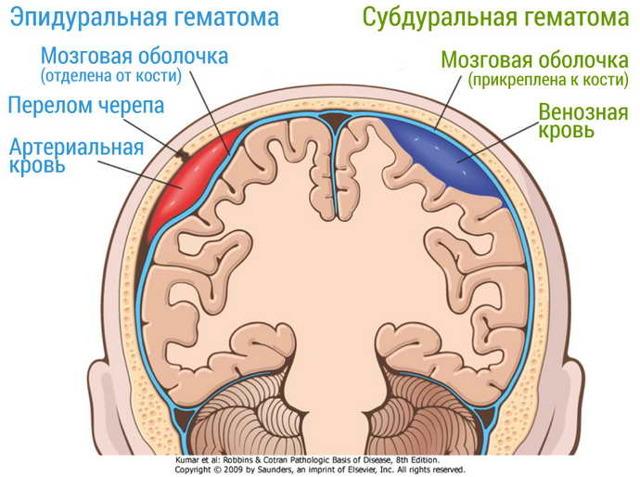 Субдуральная гематома и своевременное ее выявление