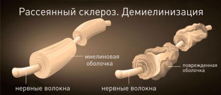 Рассеянный склероз лечится или нет