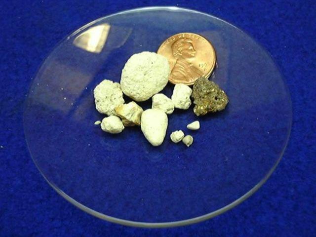 Плотность камня в почке таблица