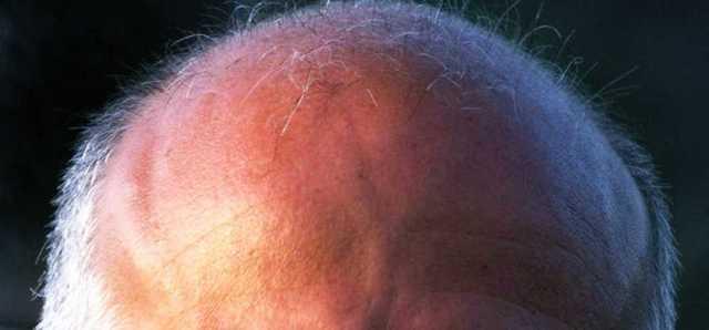 Почему появляется ощущение мурашек на голове