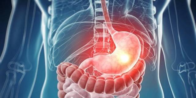 Причины и лечение боли в животе и желудке