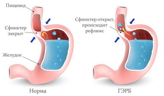 Боль в верхней части желудка: виды, причины и лечение