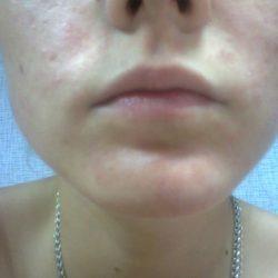 Аллергия на лице: причины, симптомы, фото, лечение