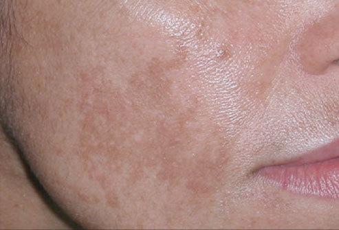 Появились белые пятна на лице у ребенка и на коже: причины и фото