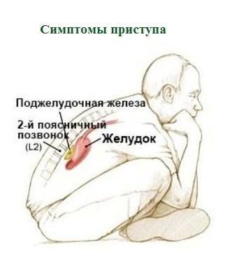 Приступ панкреатита - симптомы, как снять и распознать приступ