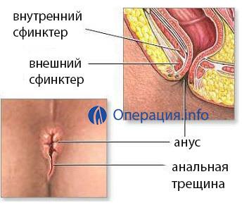 Иссечение анальной трещины: операция и восстановление