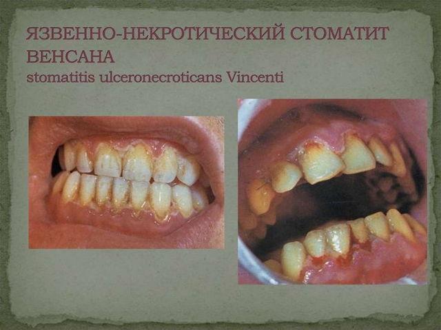 Стоматит у взрослых – лечение в домашних условиях, фото, препараты
