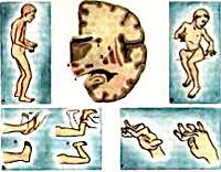 Гиперкинезы симптомы, лечение, описание