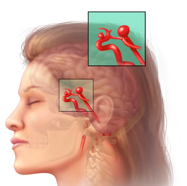 Спазм сосудов головного мозга: симптомы и лечение (препараты, таблетки)