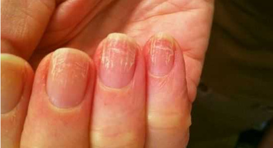 Грибок ногтей на руках: фото, начальная стадия и чем лечить