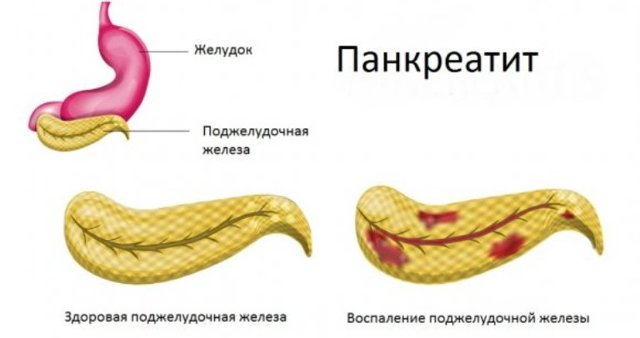 Причины и лечение боли в правом боку под ребрами спереди