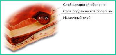 Препараты для лечения язвы двенадцатиперстной кишки