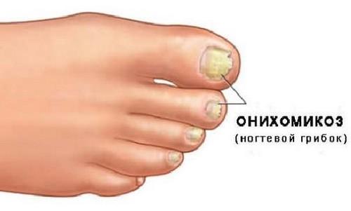 Дегтярное мыло от грибка ногтей на ногах - рецепты и отзывы