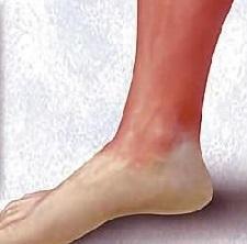 Рожа на ноге: фото, самое эффективное лечение и отзывы людей
