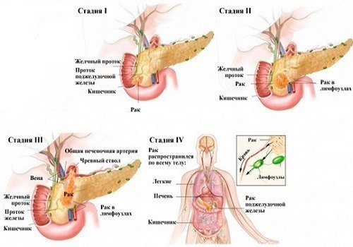 Прогнозы по сроку жизни с раком поджелудочной железы на разных стадиях