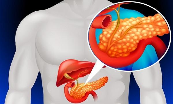 Панкреонекроз поджелудочной железы: прогноз после операции, последствия, летальный исход