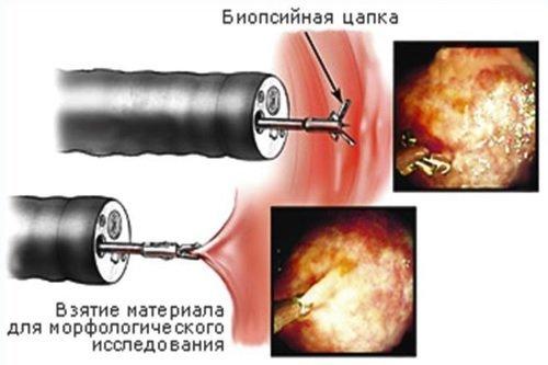 Гиперпластический полип прямой кишки: что это, нужно ли удалять
