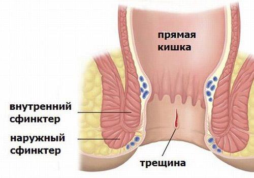 Не проходит геморрой: что делать, если долго не заживает геморройная шишка
