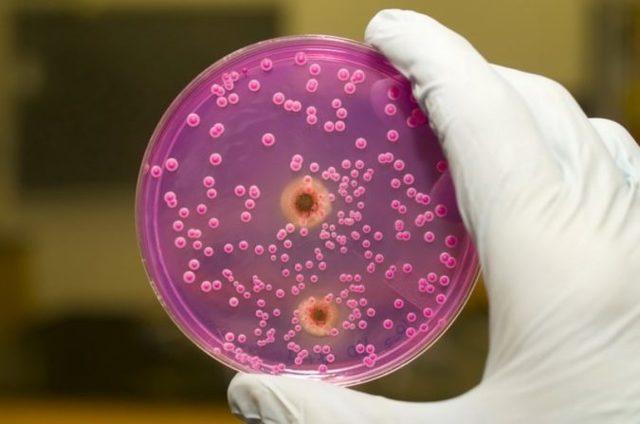 Паховый грибок у мужчин: лечение, фото и симптомы