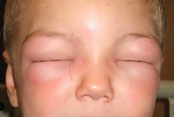 Аллергия на веках глаз - мазь от красных пятен