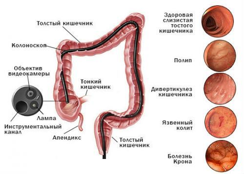 Колоноскопия кишечника – что это? Показания ...
