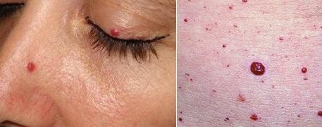 Пятна на коже при заболеваниях поджелудочной железы: кожные проявления, красные точки, сыпь, высыпания