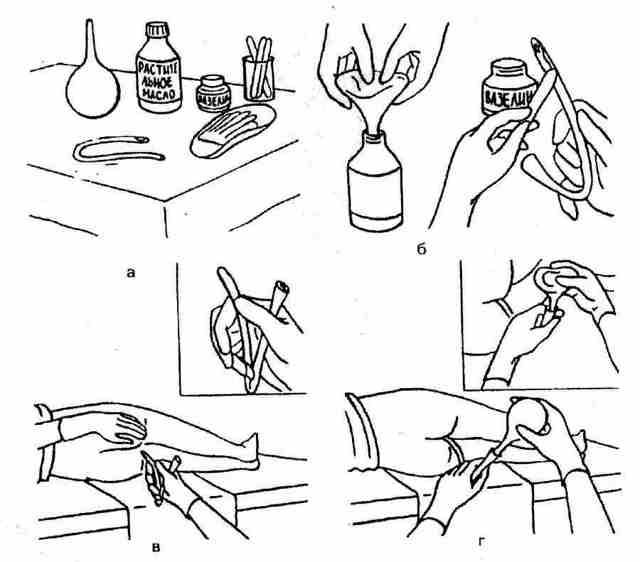 Очистительная клизма: как делать в домашних условиях самому себе, алгоритм
