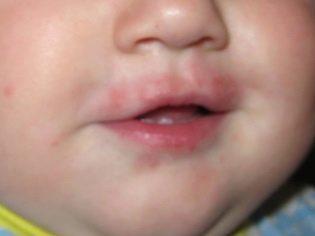 Раздражение вокруг рта у ребенка и взрослого: причины, лечение и профилактика