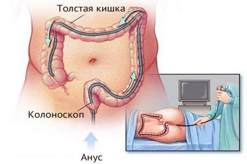 Противопоказания колоноскопии кишечника